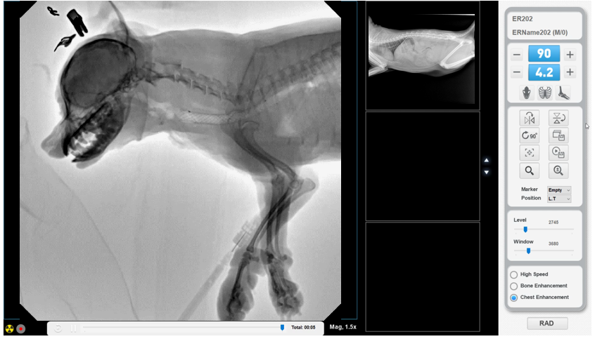 , DynaVue 2-In-1 Total Imaging Solution | Digital X-Ray and Fluoroscopy